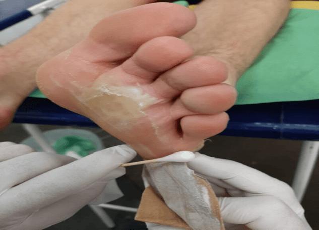 verwijderen van blaarverband (fout voorbeeld)